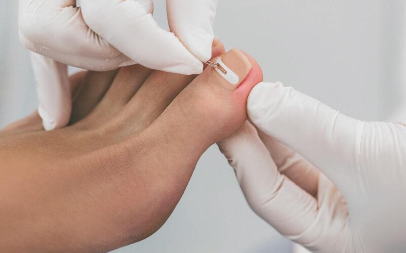 podotherapie rotterdam